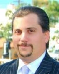 Top Rated Personal Injury Attorney in Laguna Hills, CA : Peter Iocona